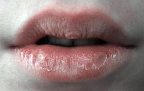 Obat Alami Bibir Pecah-Pecah